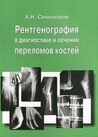 Рентгенография в диагностике и лечении переломов костей