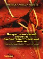 Панкреатодигестивный анастомоз при панкреатодуональной реакции