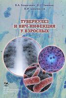 Туберкулез и ВИЧ-инфекция у взрослых